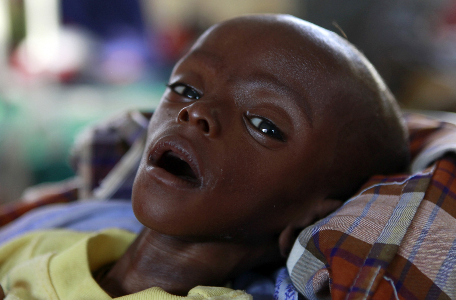 Pneumonia and diarrhoea responsible for 1.4 million child ...