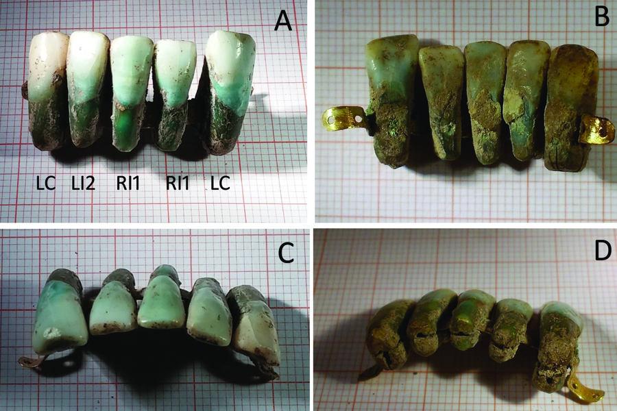 earliest dental prosthesis
