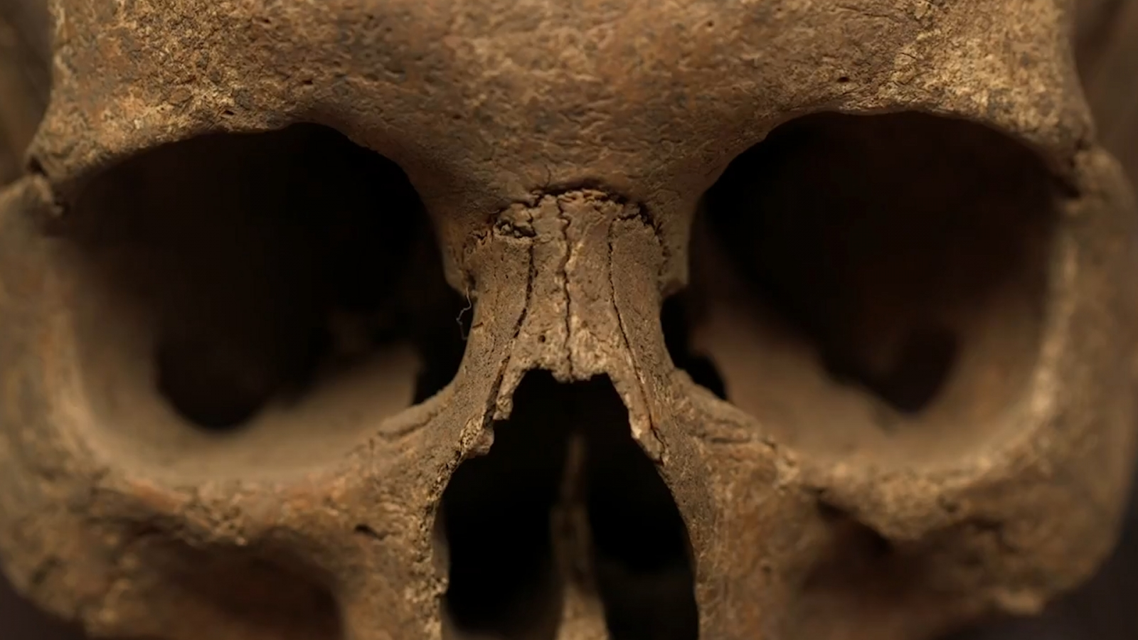 Plague skeleton