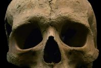 skeletal remains malaria