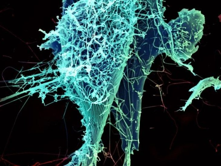 Ebola lung infection