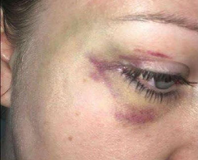 Hannah James bruises