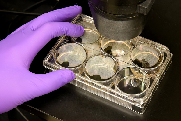 Patients warned against unproven stem cell treatments after 3 women blinded