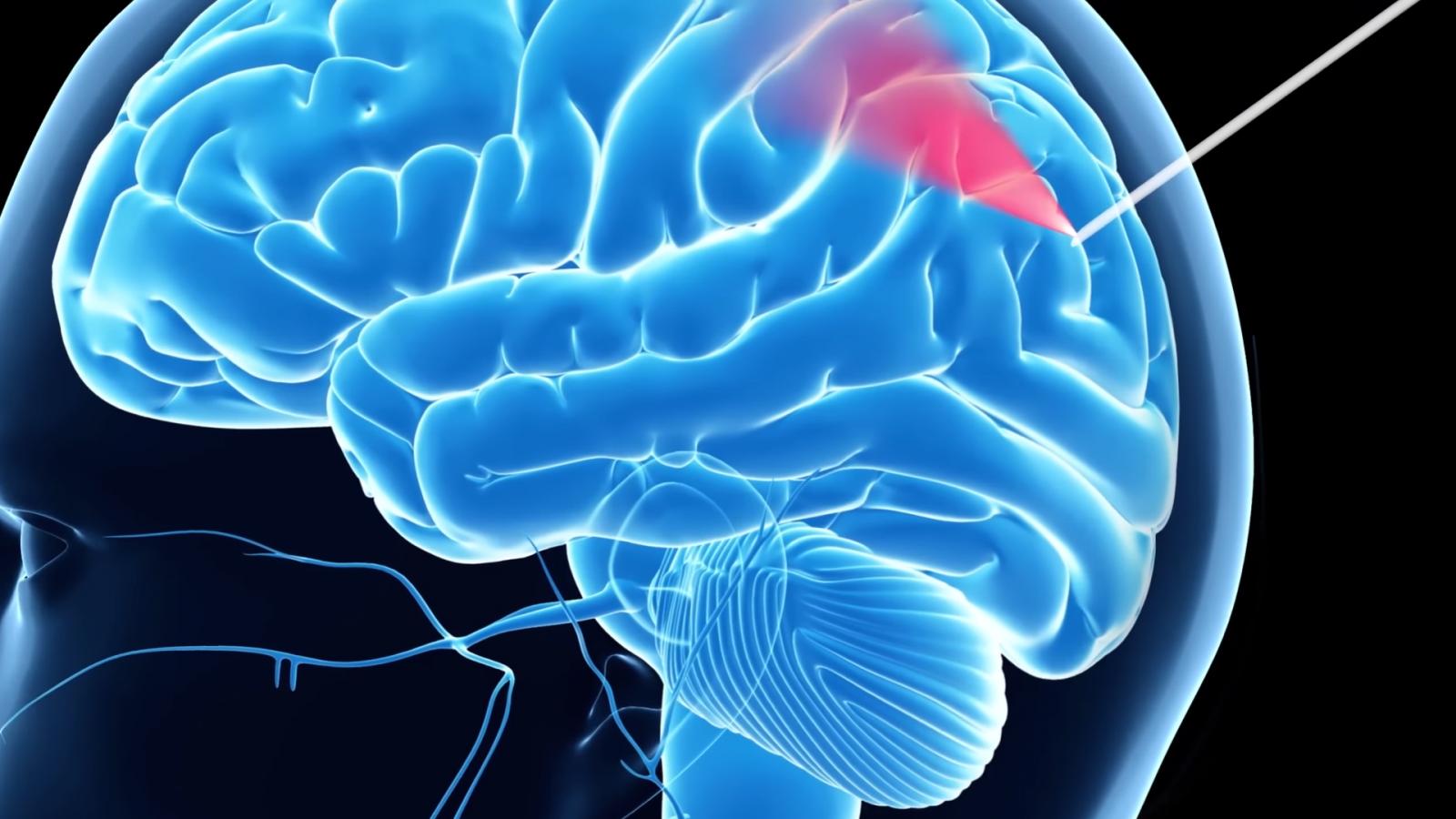 Brain Surgery smart needle