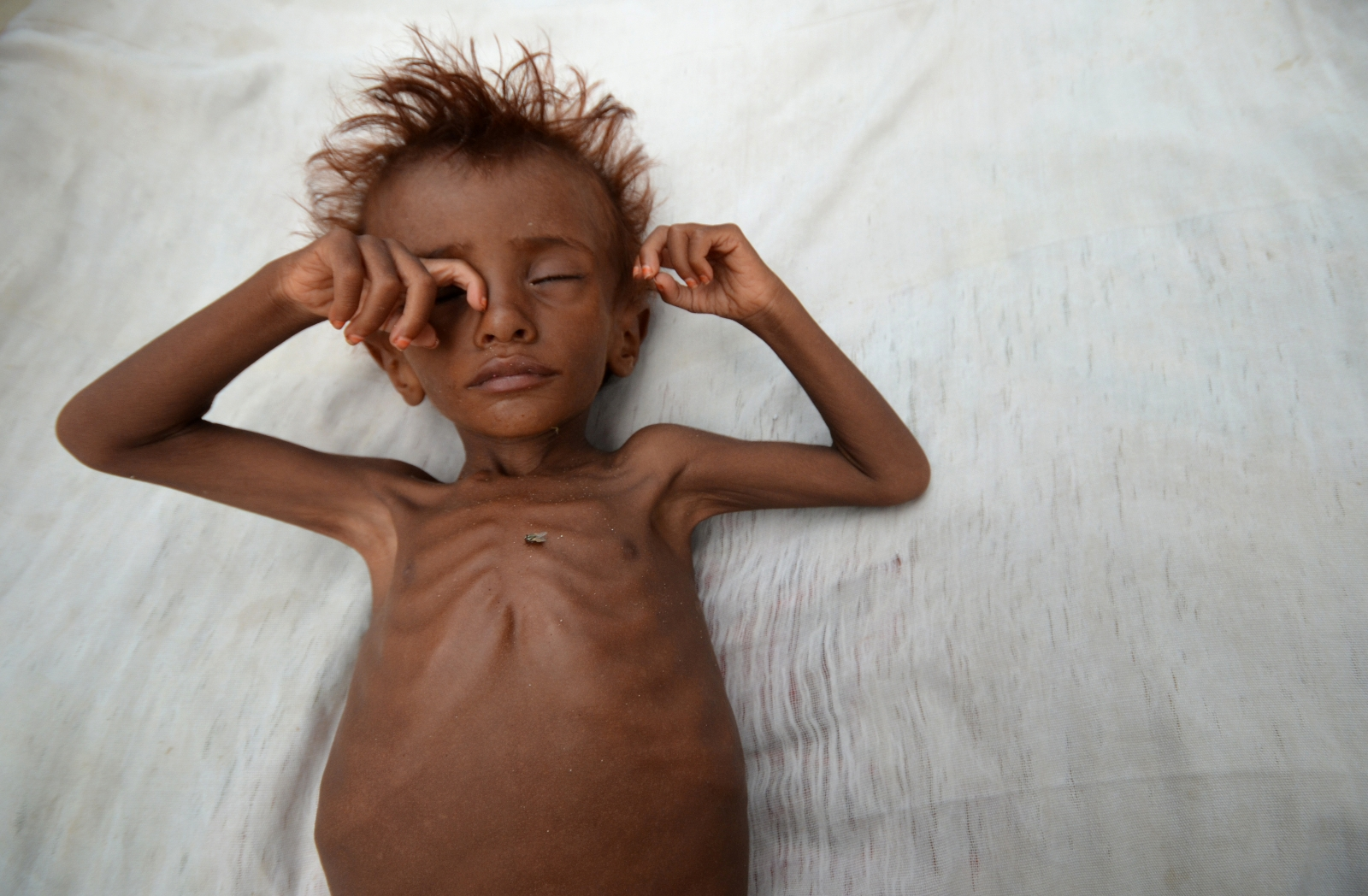 United Nations warns of starvation threat in Yemen