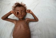 A malnourished boy