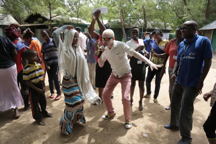 Young Burundian albino