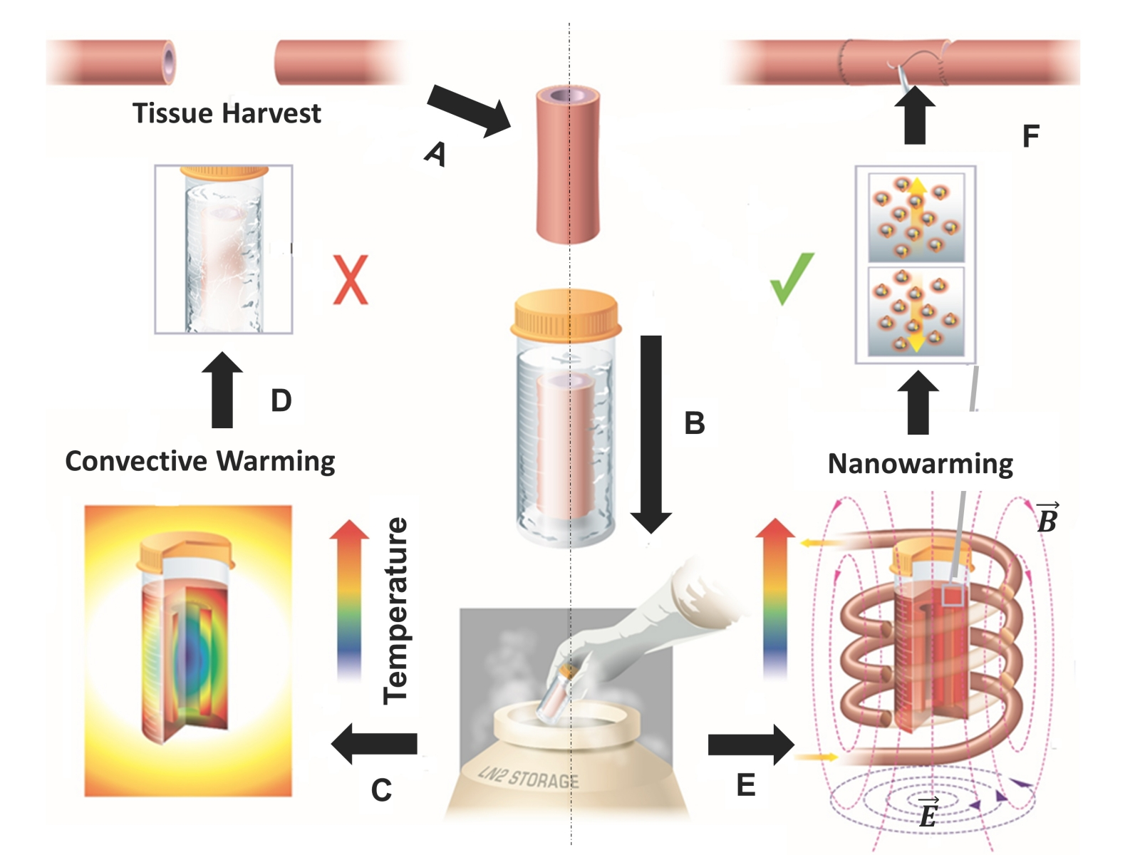 nanowarming cryogenics