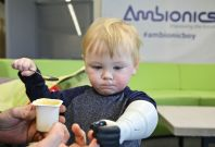 The Ambionics prosthetic arm for infants
