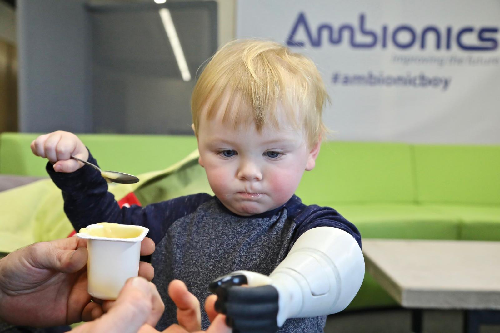 The Ambionics prosthetic arm for infants