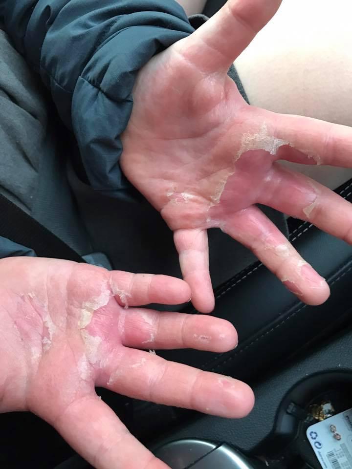 Deejay Jemmett hands