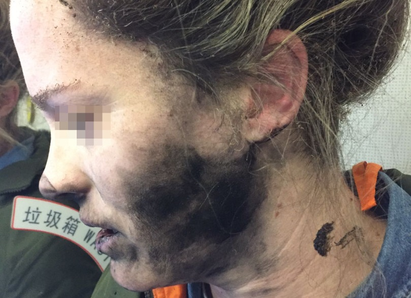 headphones burn airline passenger