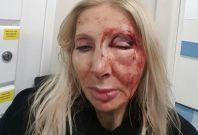 Austrian tourist beaten in London