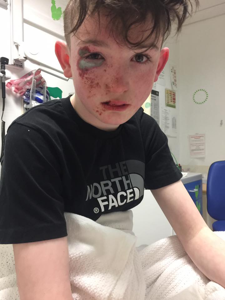 Child acid attack
