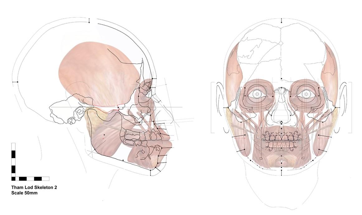 Facial approximation