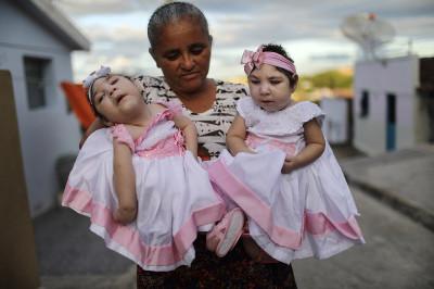 Brazil microcephaly