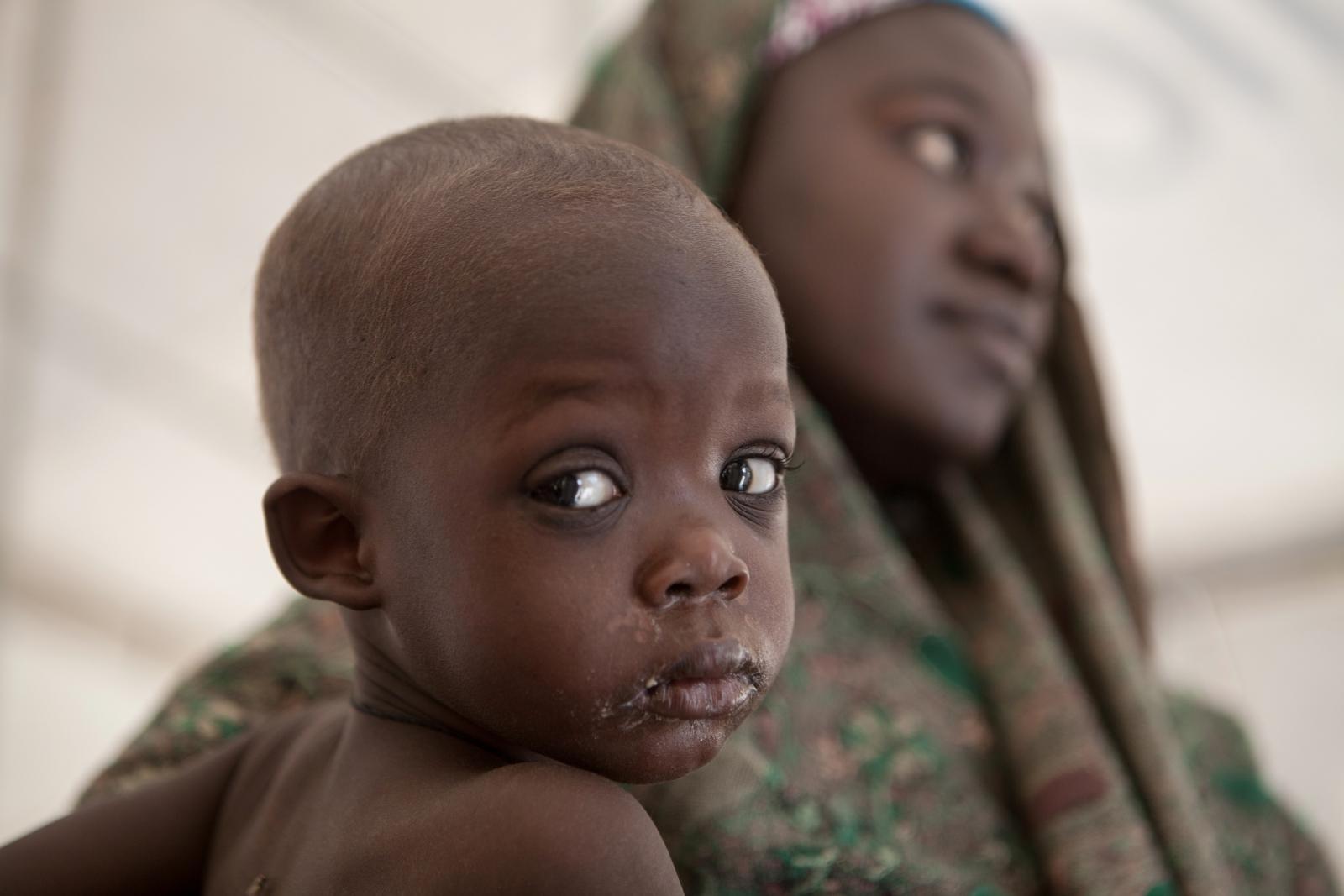 Nigerian baby