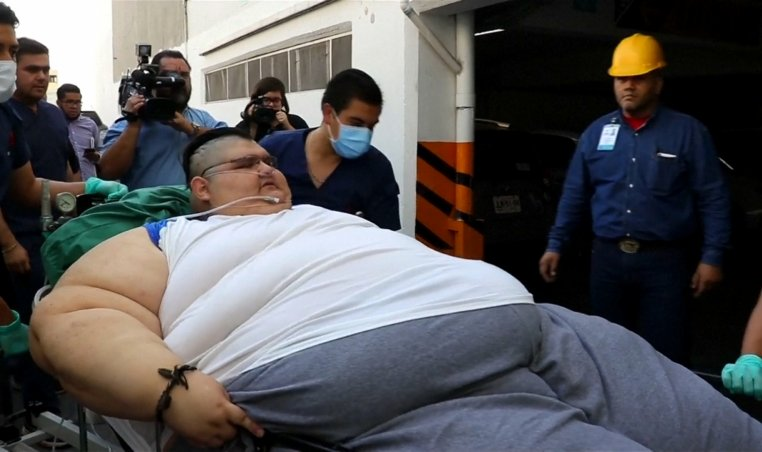 World's heaviest man to have bypass surgery to save life