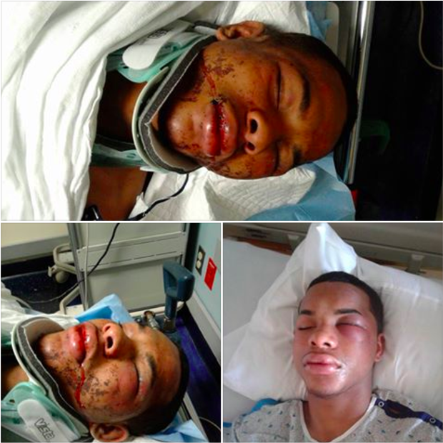 Monte Stewart NJ teen beaten by police