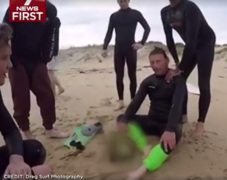 shark attack western australia