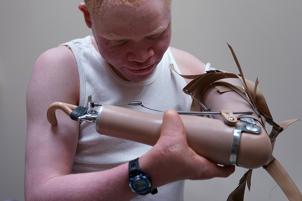 Albino Tanzania witchdoctors prosthetic limbs