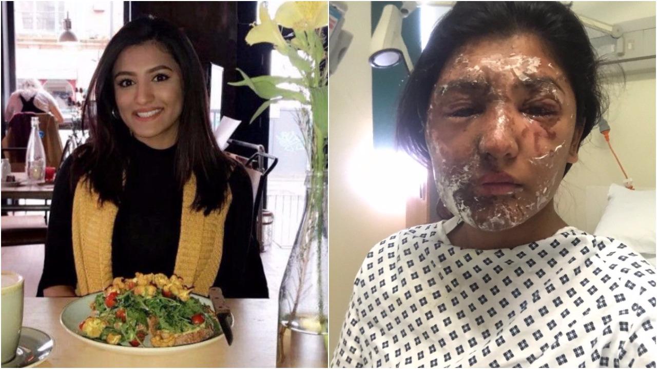 Carmen Blandin Tarleton gets face transplant after