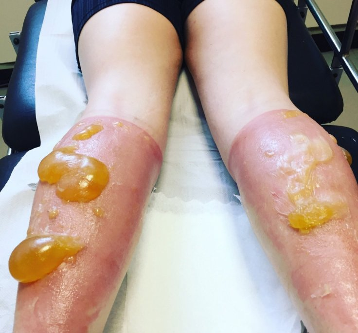 Sunburnt runner left with gruesome pus-filled sacs on legs after 69
