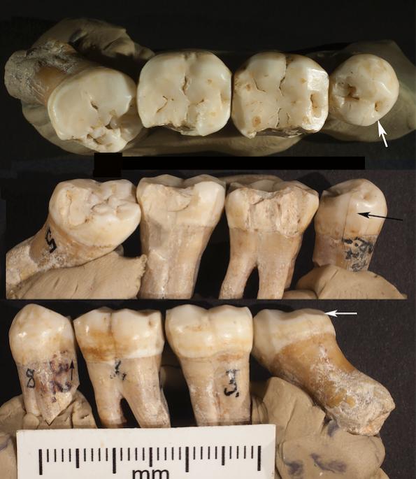 neanderthal dentistry
