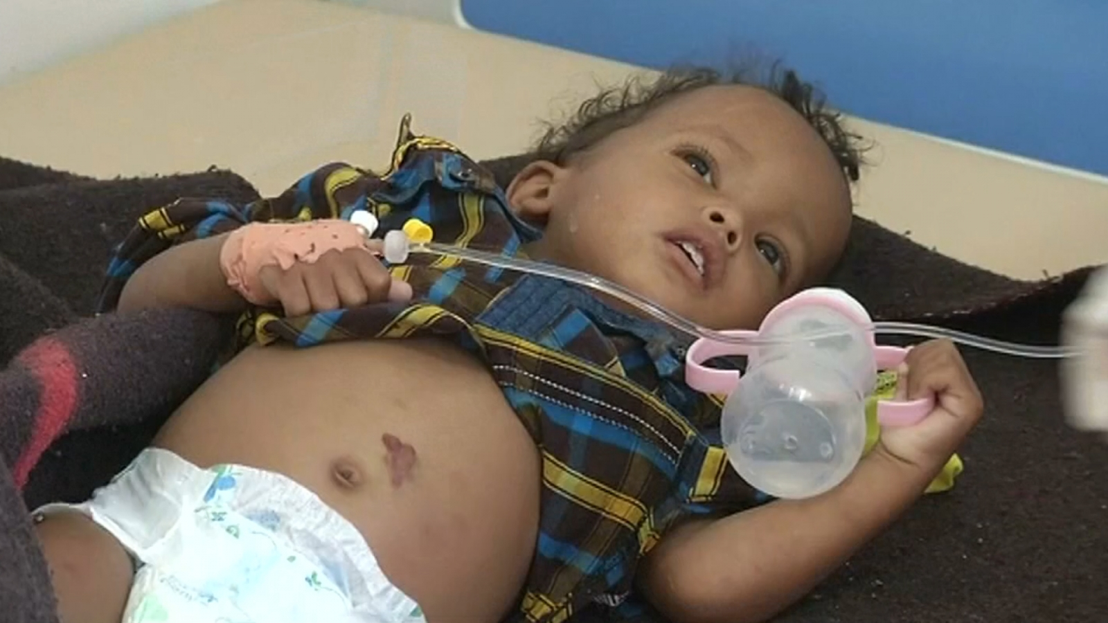 yemen-cholera-epidemic-spreads-with-nearly-250000-infected