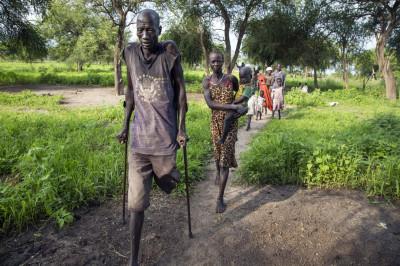 South Sudan amputee