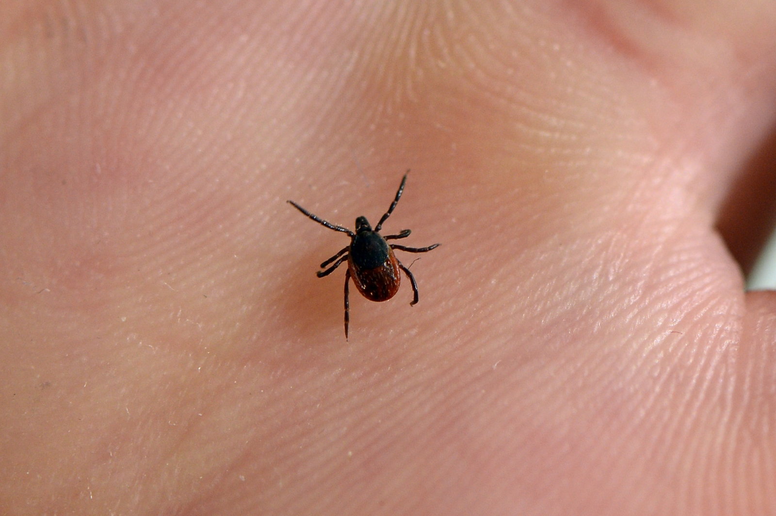 IN  sees 2 cases of new rare tick virus