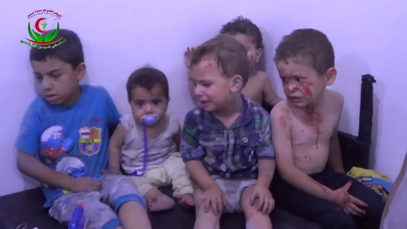 wounded-children-treated-after-air-strikes-defy-ceasefire-in-syria