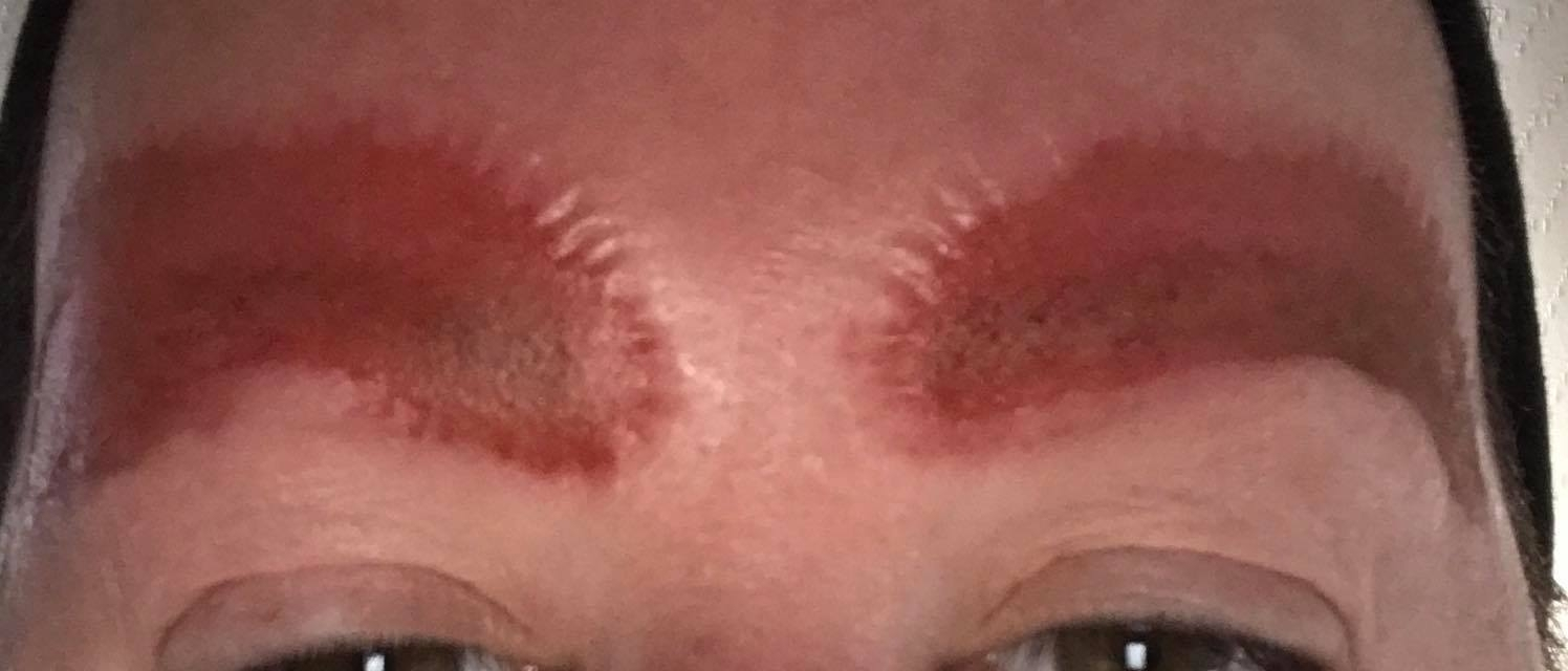 Mother Shares Horrific Photos Of Eyebrow Tattoo Infection That