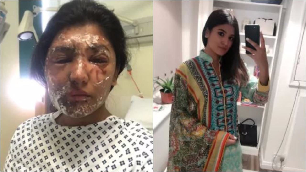 Acid attack victims fight to stop release of their film in