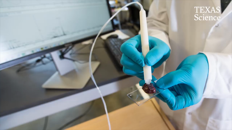 new-pen-device-accurately-identifies-cancer-in-10-seconds