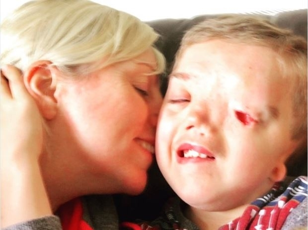 Mom Says Instagram Removed Photo of Her Son With Rare Disorder