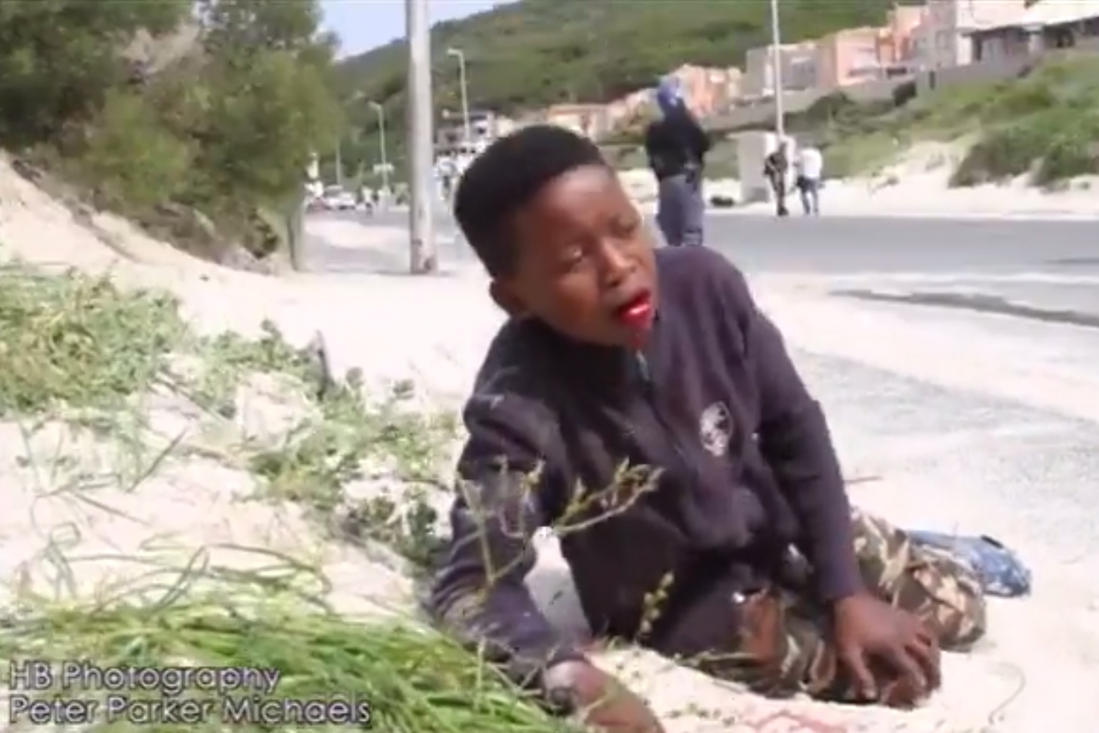 Hout Bay South Africa Boy Shot Mouth