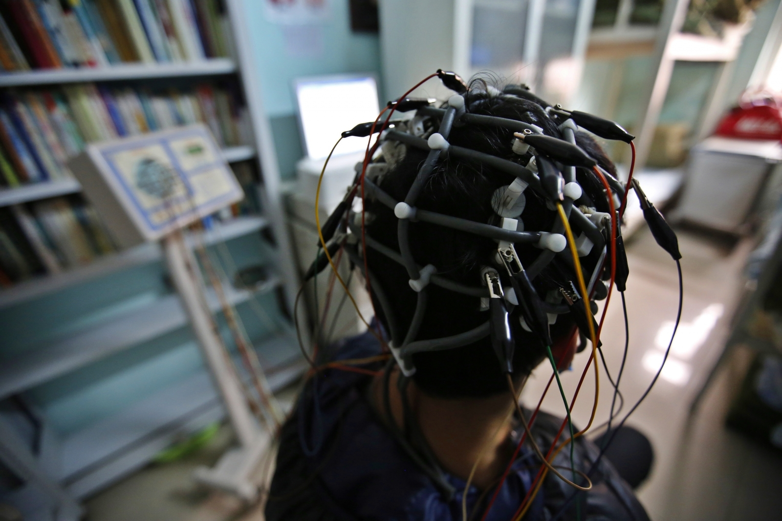 AI detects Alzheimer's