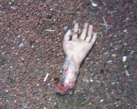 Fake severed hand leads to A19 road closure