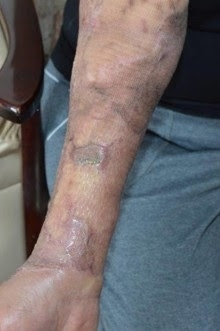 Acid attack pensioner