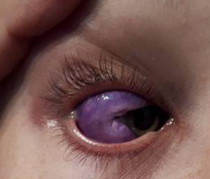 Bizarre Eyeball Tattoo Leaves Canadian Model Partially Blind