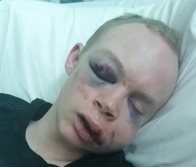 Callum Wade assaulted in London