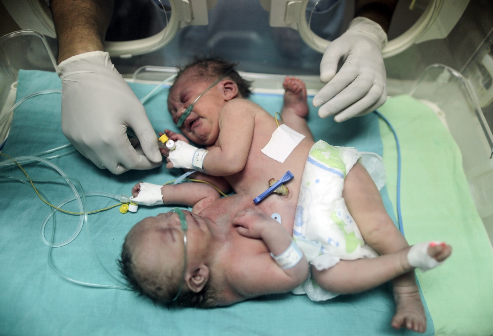 Conjoined twins in Gaza