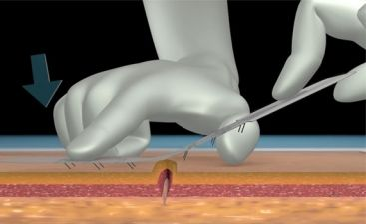 microMend bandage