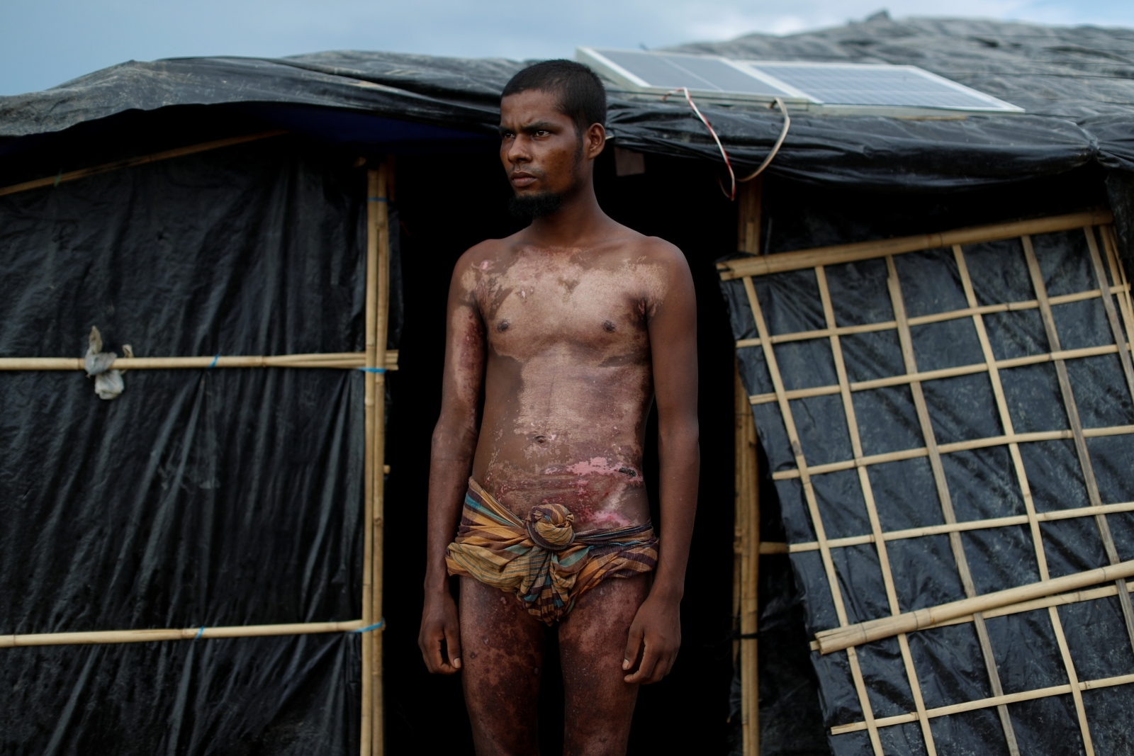 Rohingya Muslim refugee injuries