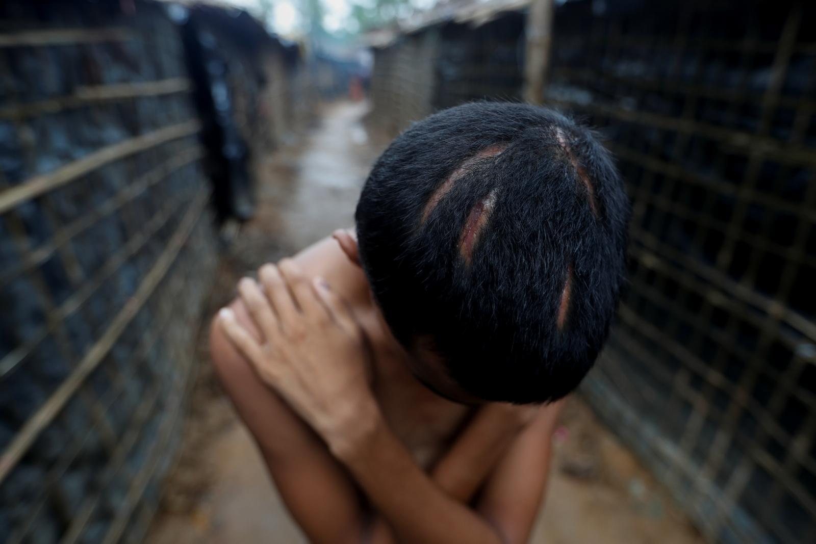 Rohingya Muslim refugee injuries