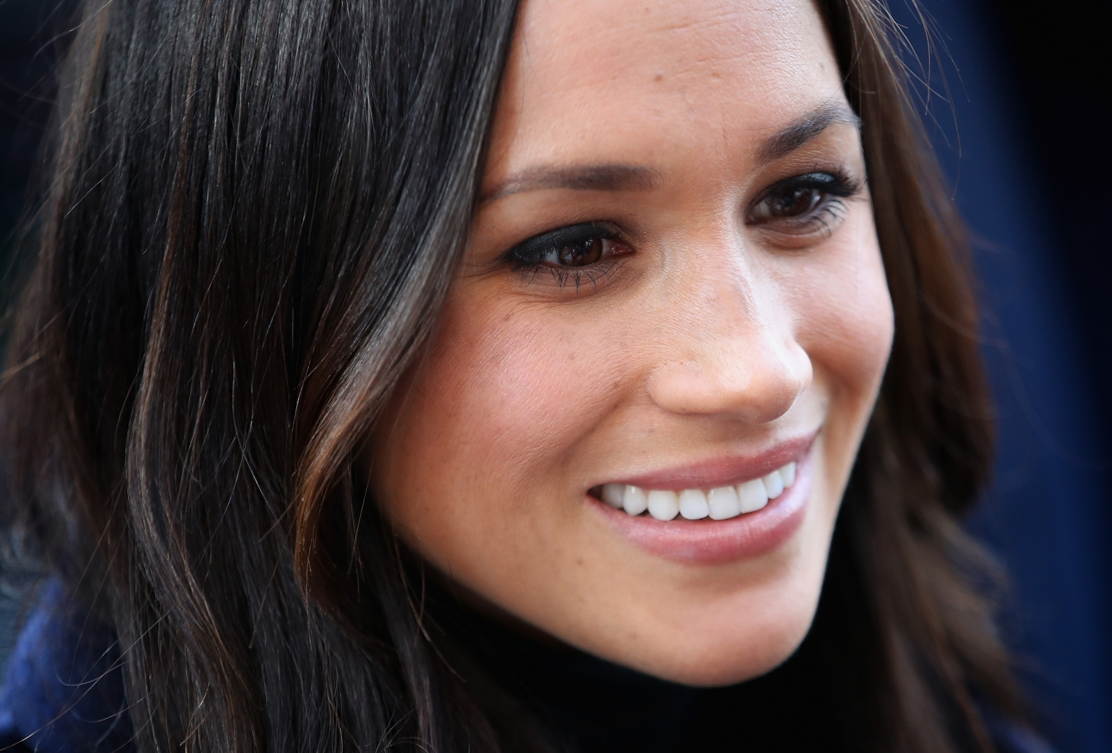 Meghan Markle 39 S Nose Why It Is So Popular And How Much