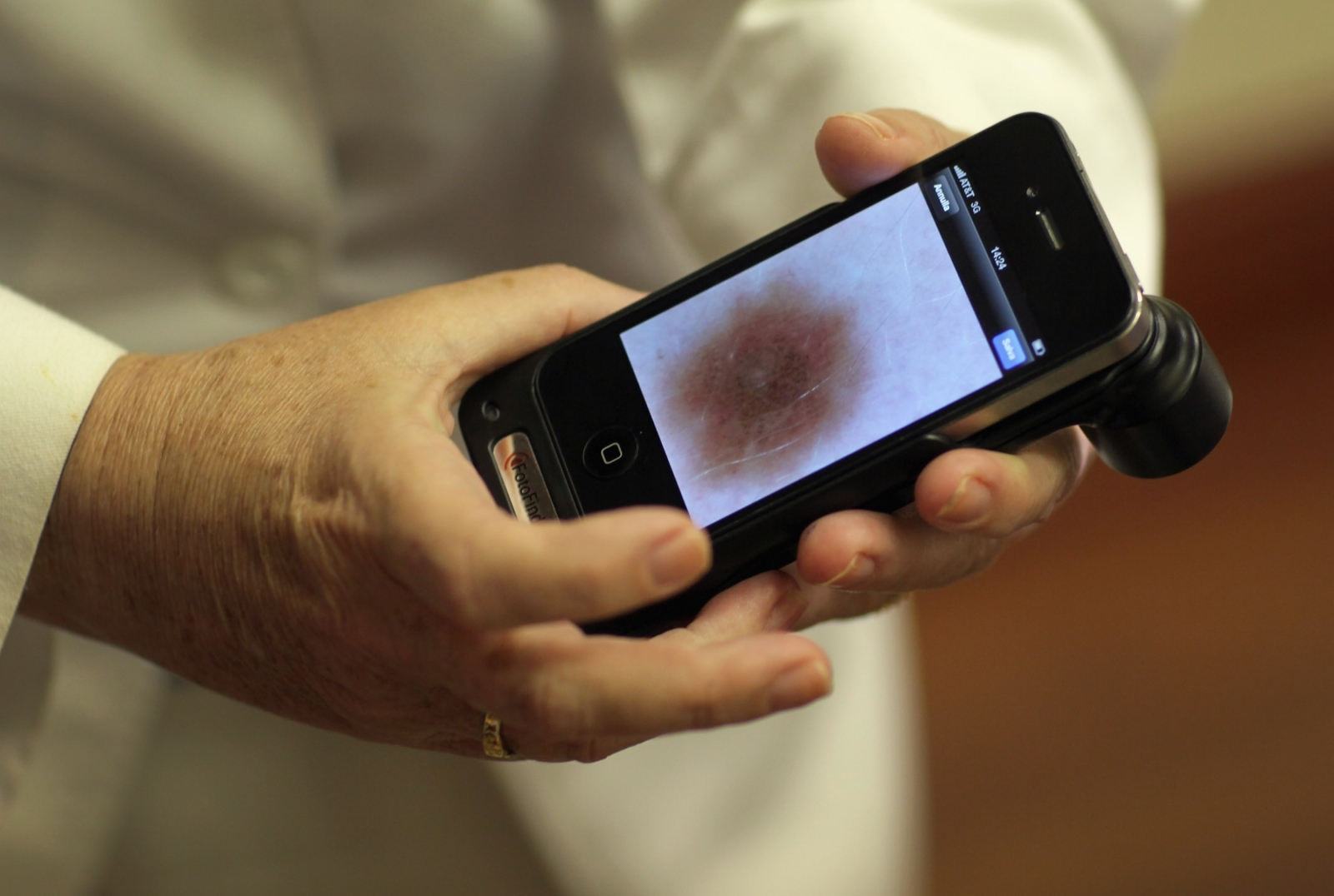 Kentucky Nurse's Viral Selfie Spiked Searches About Skin Cancer, Research Says
