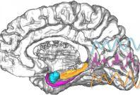 Brain amygdala electrical stimulation