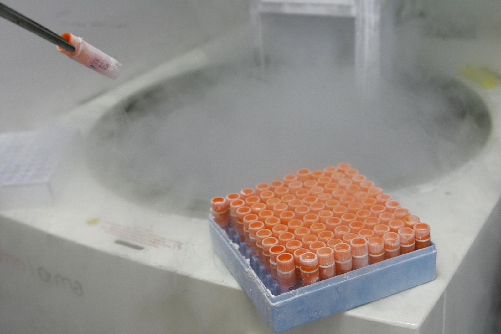 Frozen Embryo